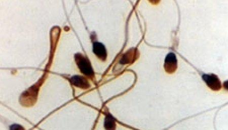 Pour les scientifiques, l'intelligence joue sur la qualité du sperme
