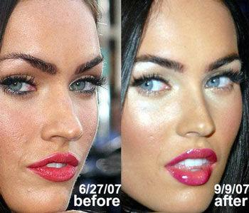 les stars avant apr s leurs transformations megan fox chirurgie esth tique