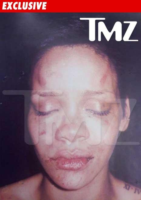 rihanna-defiguree-battue-chris-brown