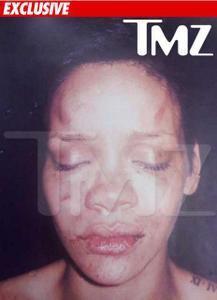TMZ sort la photo de Rihanna battue