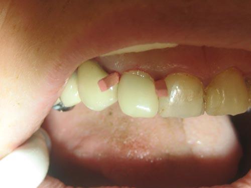 Dentisterie restauratrice extrême: technique moulodus+tenon en fibre de carbone