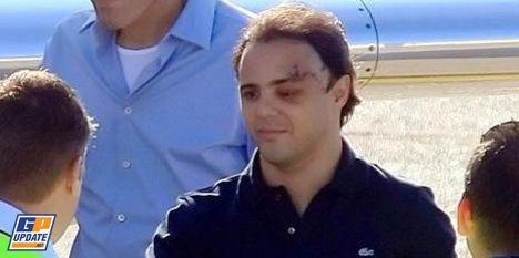 Massa accidenté et blessé 19 : Sorti de l'hôpital