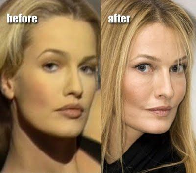 L 39 ex top model karen mulder defigur e par la chirurgie esth tique paperblog - Evelyne dheliat quel age ...