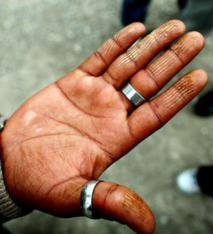Ces migrants qui sentent le cochon grillé après s'être mutilés les doigts