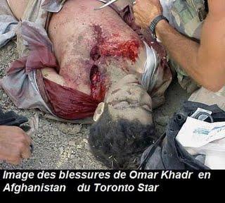 Affaire Omar Khadr : Obama un vire capot, Harper un fumiste