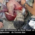 Omar Ahmed Khadr, lésé dans ses droits