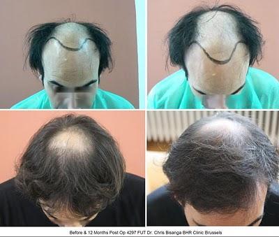 4297 660 fut bhr clinic dr bisanga clinique greffe de cheveux photos avant apr s. Black Bedroom Furniture Sets. Home Design Ideas