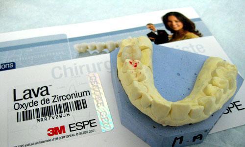 Endocouronne sur armature Zircone en CFAO indirecte LAVA