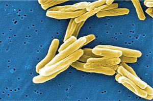 tuberculose_450850