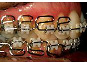 Orthodontie bien choisir anti-douleur analgésique