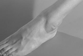 Le traitement contre les lamblias chez les adultes les rappels
