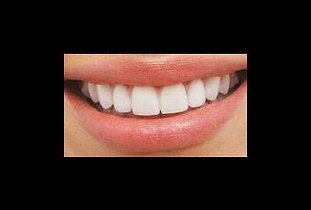 Rem des de grand m re pour blanchir les dents d couvrir - Doigt blanc remede grand mere ...