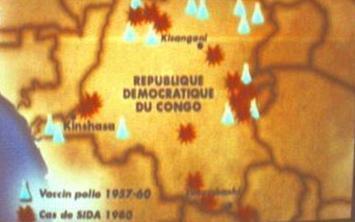 Qui est à l'origine du sida ? La médecine coloniale des années 60 !