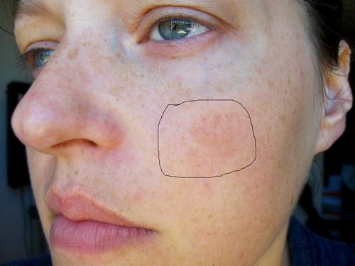Comme nettoyer la personne de la pigmentation
