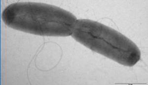 E. coli: Le traitement par Soliris adopté à Bordeaux – ARS et InVS