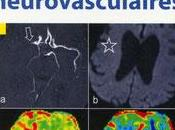 Guide pratique Urgences Neurovasculaires Springer 2011