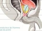 CANCER PROSTATE: circoncision associée réduction risque Cancer l'American Society