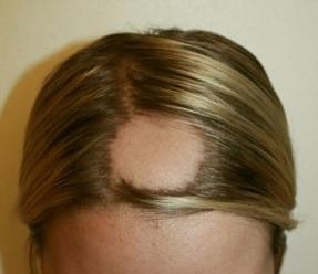 Les moyens chimiques pour le redressement des cheveu