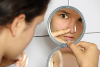 Recettes naturelles contre l'acné modérée et les cicatrices d'acné (1/3)