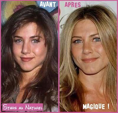Jennifer Aniston et la chirurgie esthétique