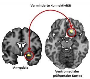 NEURO: Comment l'anxiété peut rester ancrée à jamais – The Journal of Neuroscience