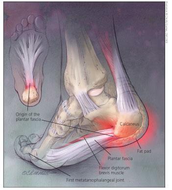 Douleurs au dos et aux pieds attention aux gougounes for Douleur interieur du pied