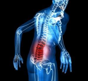 Osteokhondroz du service coccygien de lépine dorsale