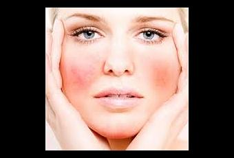 comment traiter les varicosit s du visage d couvrir. Black Bedroom Furniture Sets. Home Design Ideas