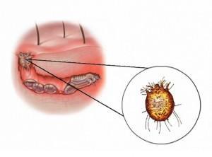 Les parasites chez les élans dangereux pour la personne