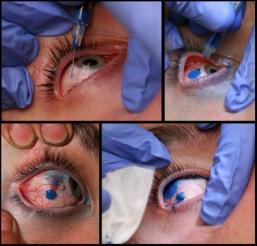 Eye ball tattoo ou yeux de billes le tatouage des yeux for Interieur yeux rouge