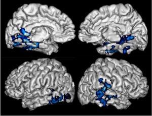 ALZHEIMER: La vitamine B pour préserver la matière grise du cerveau – PNAS