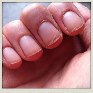 Quand trop mettre de vernis vous ruine les ongles.