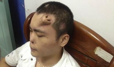 Perdu son premier nez dans un accident de voiture. Un nouveau nez sur ...