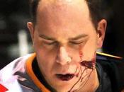 Sébastien Courcelles fait couper joue avec patin glace