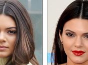 Kendall Jenner Est-ce qu'elle reçu rhinoplastie