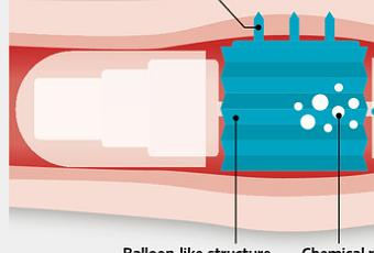 Les douleurs à la varicosité les préparations