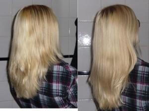 Arrêter la chute des cheveux au stress