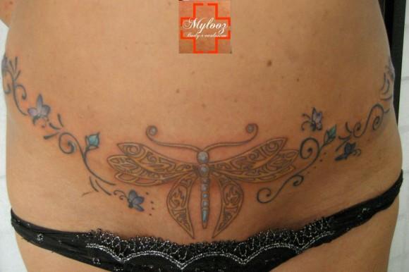 des tatouages couvrant des cicatrices paperblog. Black Bedroom Furniture Sets. Home Design Ideas