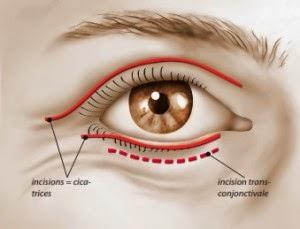 Comme enlever les cercles blancs autour des yeux