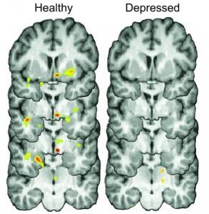 DÉPRESSION: Se secouer? Pas facile quand on est déprimé! – Molecular Psychiatry