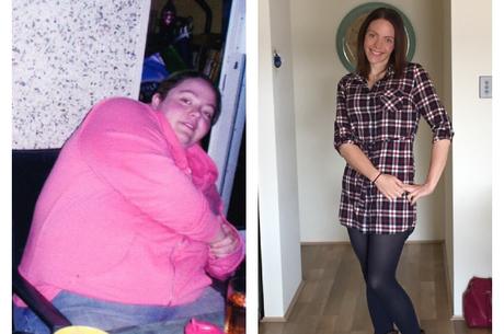 Les photos chocs d'une femme ayant perdu 100 kilos