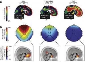 SOMMEIL et AZHEIMER: L'amyloïde attaque de nuit – Nature Neuroscience
