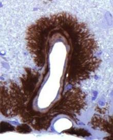 CREUTZFELDT-JACOB: Mais où courent les prions? – mBio