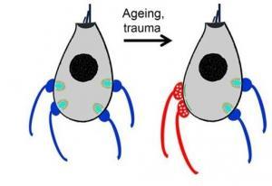 PERTE d'AUDITION avec l'âge: Problème d'oreille interne ou de neurones? – The Journal of Neuroscience