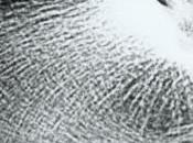 L'épine calcanéenne qu'il faut savoir traitement