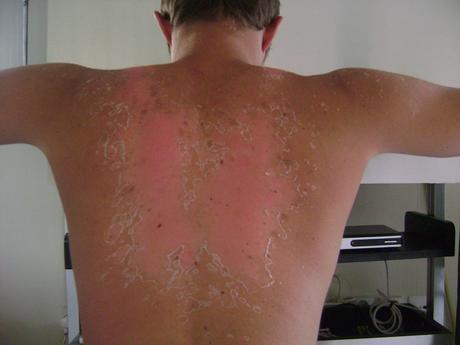 J'ai testé le bronzage au henné Article BeauTystas Trucs De Nana