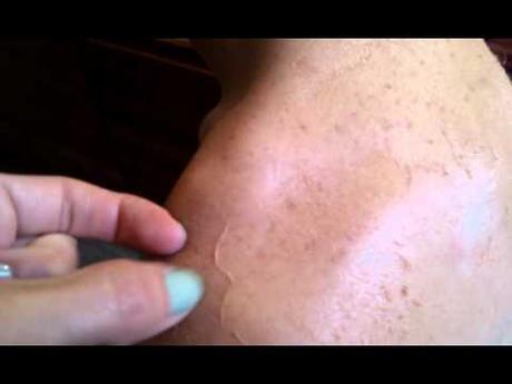 bronzage peau qui gratte