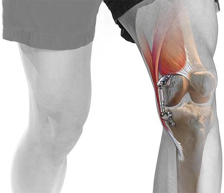 knee-atlas