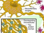 ALZHEIMER Premier vaccin thérapeutique anti-Tau Lancet Neurology