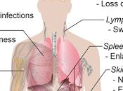 #thelancethaematology #leucemielymphoïdechronique #myelofibrose #ruloxitinib Ruxolitinib pour contrôle symptômes chez patients atteints leucémie lymphoïde chronique: essai phase